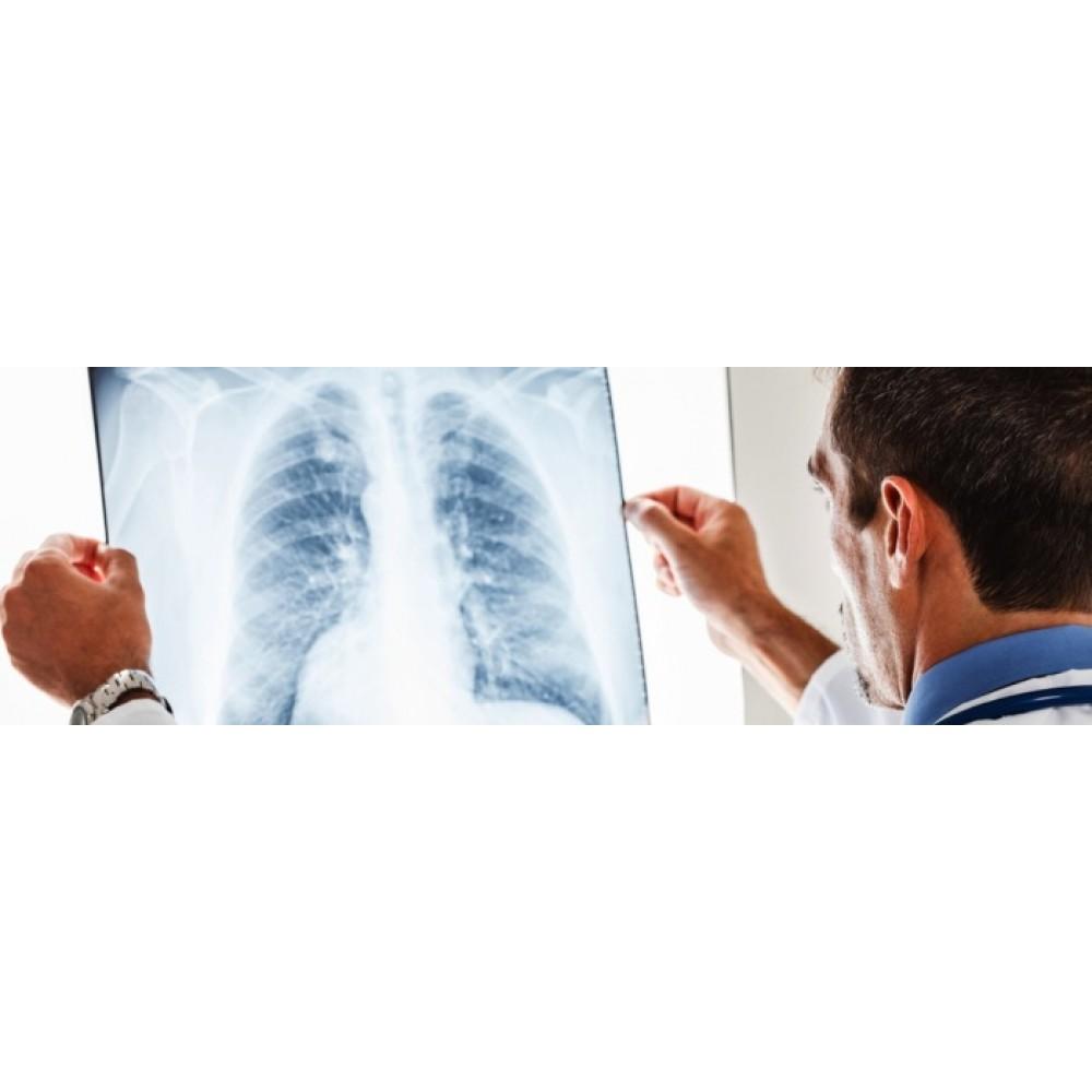 Pneumonija – ji iki šiol pavojinga!